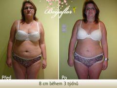 liposukce slim up výsledek  8 cm během 3 týdnů