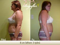 liposukce slim zpevnění výsledek  8 cm během 3 týdnů
