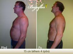Hubnutí přístroji, dietou a detoxikací 15 cm během 4 týdnů