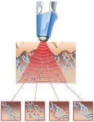 Lifting,takto se obnoví Vaše kolagenová vlákna přístrojem protégé exilis