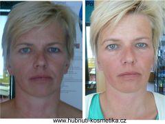 Facelifting - klienta před ošetřením a po ošetření
