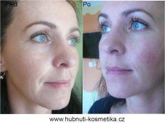 Litting obličeje před a po ošetření protégé exiilis