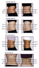 Lipolaser, revoluční liposukce výsledky