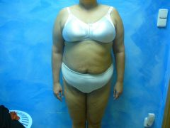 Klientka před hubnutím 12.10.2012