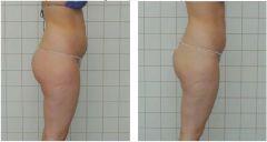 Hubnutí, liposukce, odstranění celulitidy, zpevnění pokožky - SLIM UP, Im FIT Esthetic Center, Praha 9